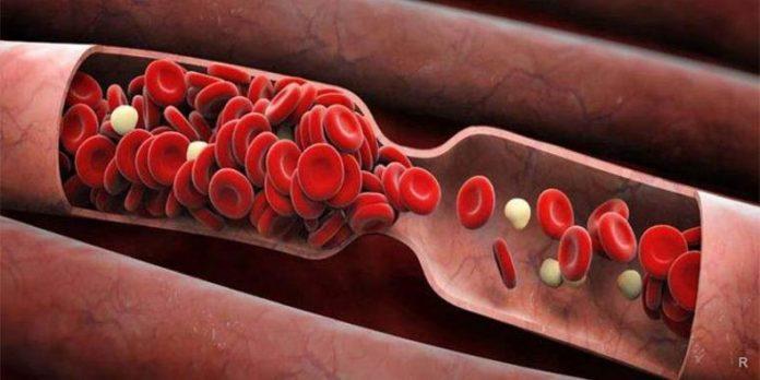 Какие показатели крови указывают на заболевание